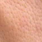 たるみ毛穴-150x150